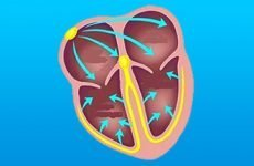 Що таке завмирання серця і чим лікувати перебої