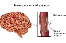 Піднімається температура при інсульті: причини підвищення і наслідки