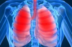 Набряк легенів: симптоми у літніх людей, ознаки, невідкладна допомога, лікування дорослих