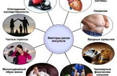 Наслідки після інсульту: можливі ускладнення для людини