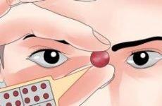Хронічна екзема кистей рук: причини і лікування. Як і чим лікувати хронічну екзему