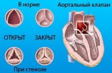 Що таке набуті вади серця і які симптоми