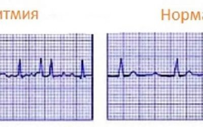 Аритмія серця: симптоми, причини, види і лікування аритмії