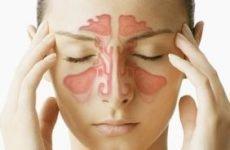 Болять гайморові пазухи: розташування, запалення, що робити? Чому болять пазухи?