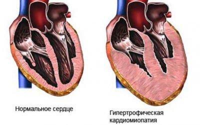 Чому буває велика (бичаче) серце: причини і лікування хвороби