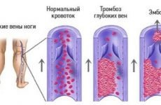 Чим небезпечний тромбоз глибоких вен нижніх кінцівок?