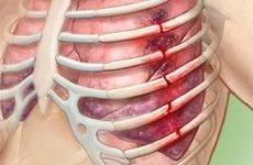Заходи при закритому переломі ребер: анатомічні особливості, перша медична допомога, можливі ускладнення та способи лікування