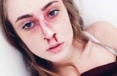Що робити при переломі носа: перша допомога і подальша терапія