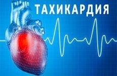 Пароксизмальна надшлуночкові тахікардія – ознаки на ЕКГ і лікування