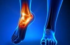 Трехлодыжечный перелом зі зміщенням: методи лікування