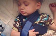 Як розпізнати і лікувати перелом ключиці у дитини