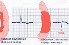 Обширний інфаркт міокарда: наслідки, причини, симптоми і шанси вижити