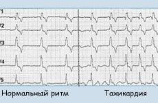 Що таке тахікардія серця і як розпізнати її симптоми?