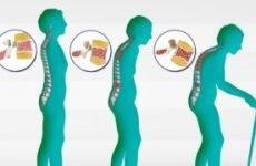 Остеопороз: лікування народними засобами в літньому віці у жінок