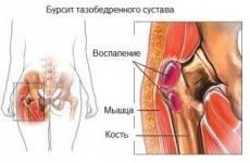 42 причини, при яких болить поперек і віддає в ногу