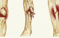 Закритий перелом: класифікація, деякі особливості різновидів і методи лікування