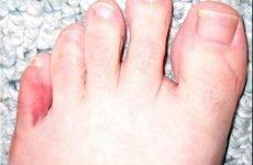 Симптоми перелому мізинця на нозі: механізм виникнення, особливості протікання, лікувальні методики і відновний період