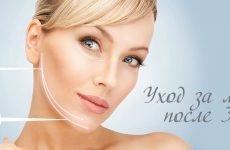 Найдієвіші косметичні процедури для омолодження обличчя після 30 років