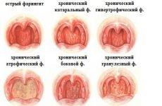 Бічний хронічний фарингіт
