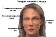 Гімнастика для обличчя при невриті лицьового нерва