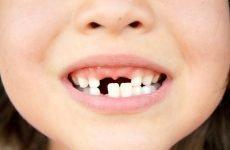 Коли випадають молочні зуби у дітей: терміни, послідовність і схема