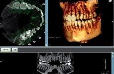 Комп'ютерна томографія щелепи: призначення, проведення і протипоказання