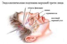 Ендоскопічний ліфтинг — краща альтернатива для підтяжки обличчя
