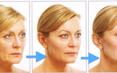 Сучасні безопераційні методи підтяжки обличчя