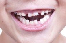 Як вирвати молочний зуб правильно в домашніх умовах