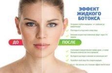 Як правильно застосовувати ботокс для обличчя? Поради та багато іншого