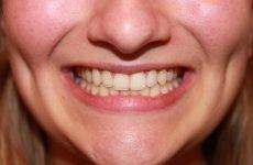 Чому кришаться зуби у дорослих: причини та способи лікування