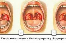 Катаральна ангіна: її симптоми і лікування