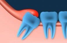 Капюшон на зубі мудрості: причини виникнення та методи лікування