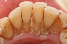 Зубний камінь: основні методи лікування в домашніх умовах