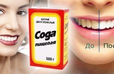 Можна чистити зуби харчовою содою: користь і шкода