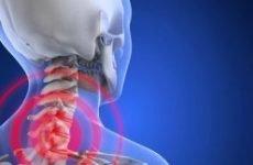 Безсоння при остеохондрозі шийного відділу – причини, симптоми, лікування