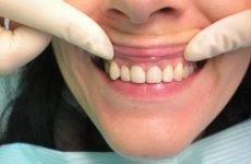 Відбілювання мертвого зуба: можна відбілити потемнілий зуб і як правильно це зробити