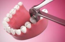 Болить ясна після видалення зуба: що робити в домашніх умовах