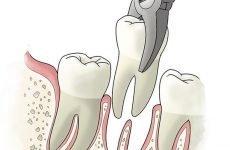 Набряк після видалення зуба: скільки він тримається і як його зняти?