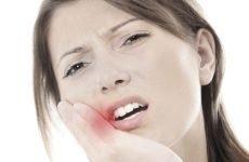 Біль у роті: причини і що з цим робити?