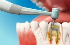 Болить зуб після чищення каналів: причини і методи лікування