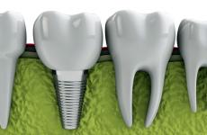Які зуби вставляти: різновиди та особливості протезування