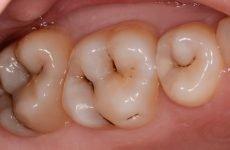Лікування карієсу: сучасні методики в стоматології