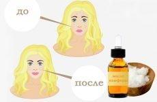 Рекомендації по застосуванню камфорного масла проти зморшок на обличчі — відгуки жінок