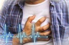 Причини підвищення артеріального тиску при ходьбі