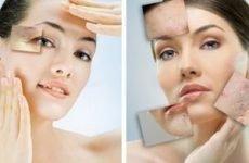 Розгладжуємо зморшки на обличчі за допомогою масок з імбиром — кращі рецепти в домашніх умовах