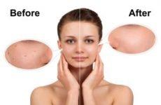 Процедура чищення обличчя — ручний або апаратний метод