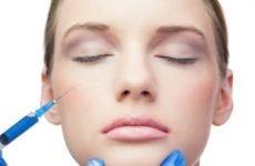 Ботокс для обличчя — докладний опис процедури, строк дії препарату