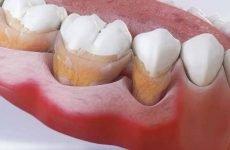 Таблетки для індикації зубного нальоту: склад, принцип дії, аспекти вибору