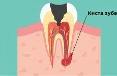 Кіста зуба лікування в домашніх умовах: найбільш ефективні методи
